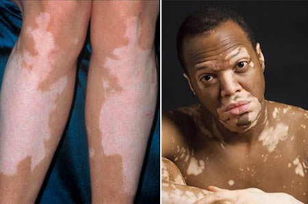 Skin Pigmentation Disorders | definition of Skin ...